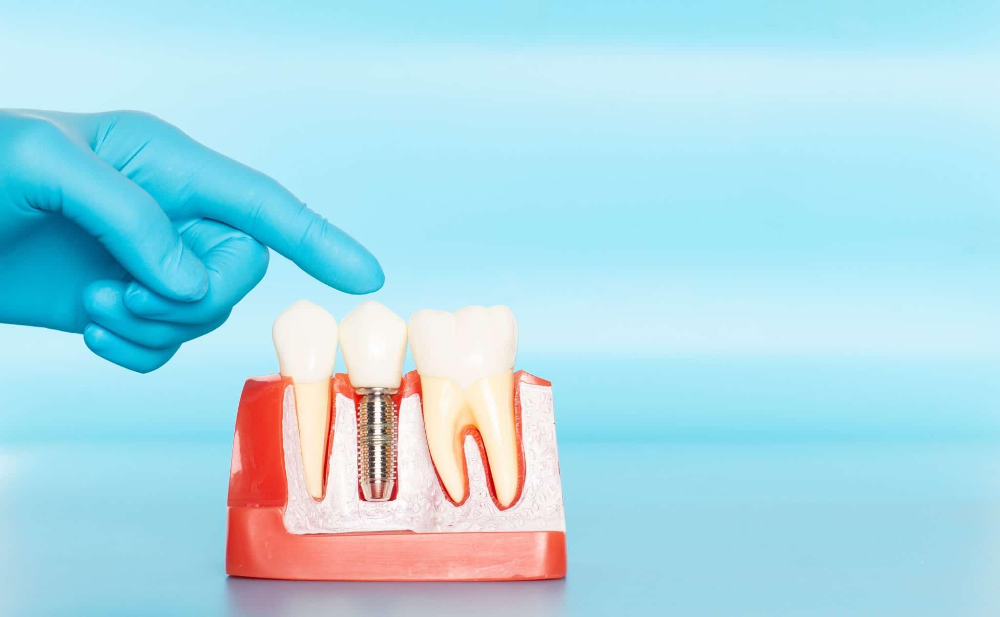 Протезирование зубов: современные виды